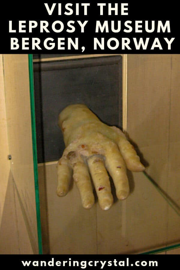 Visit the Leprosy Museum in Bergen Norway and learn the history of leprosy, Hansen's Disease and how to visit the museum.