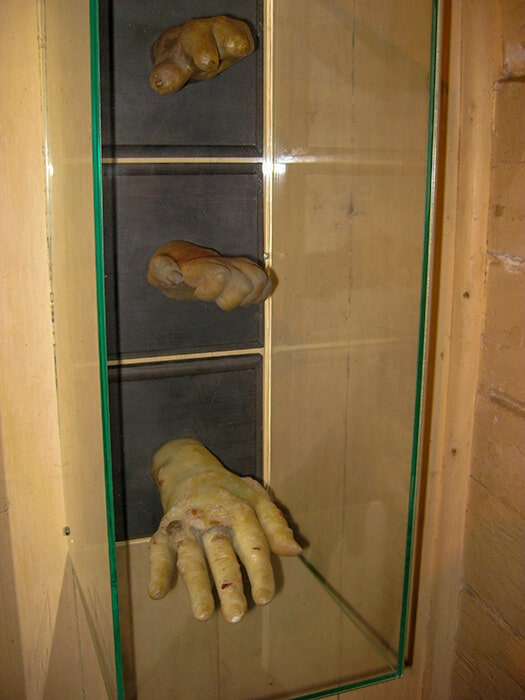 Hand models displaying the effects of leprosy