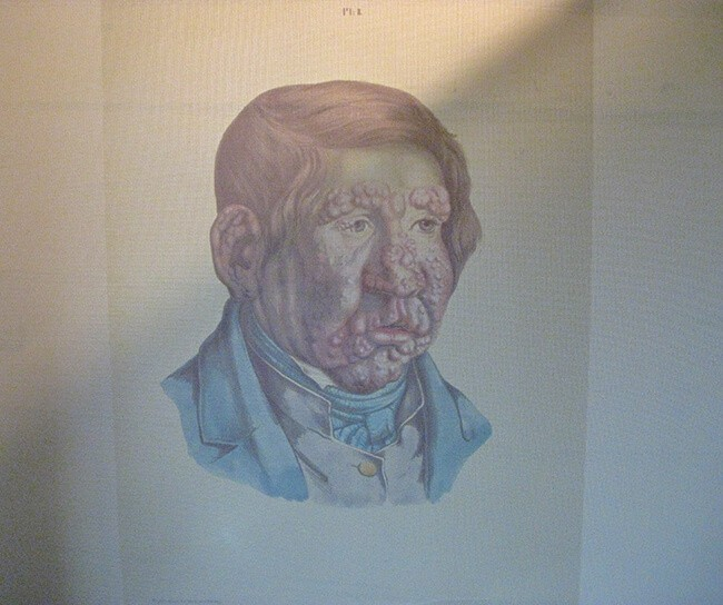 Sketch of a Leprosy Patient from Leprosy Museum in Bergen